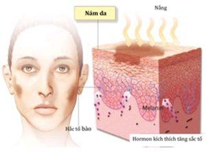 serum trị nám Nanoluxe