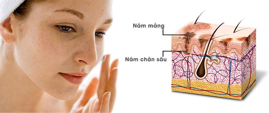 Xóa sach nám chỉ trong 3 tuần với Serum đặc trị nám Nanoluxe MD