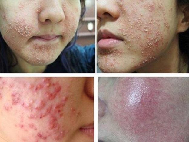 Viêm da, mụn mủ, rối loạn sắc tố do lạm dụng kem trộn, kem kích trắng