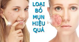 Kem trị mụn cho da nhờn hiệu quả nhất