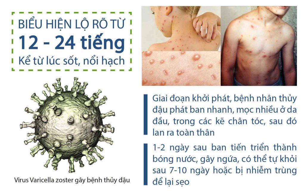 Lộ trình tiến triển của vùng da bị thủy đậu