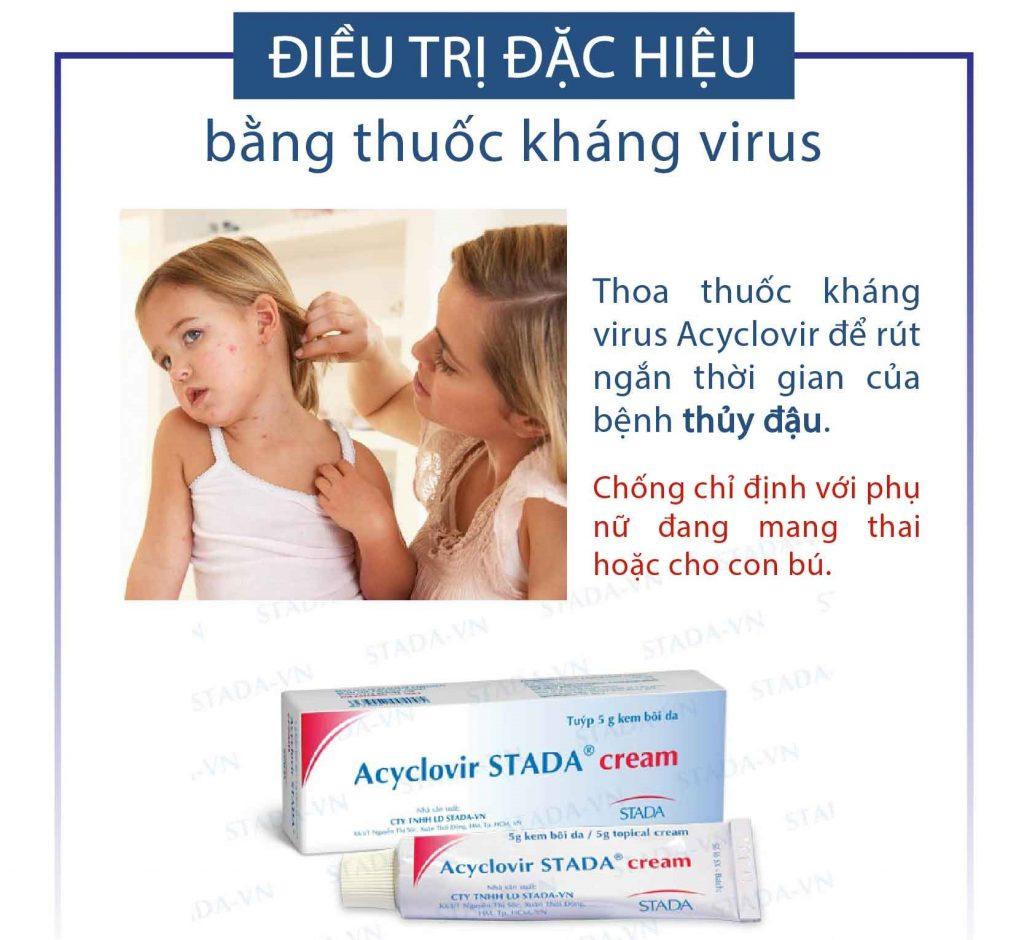 Điều trị thủy đậu đặc hiệu bằng thuốc kháng virus