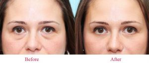 Hiệu quả sau khi dùng kem dưỡng da mắt