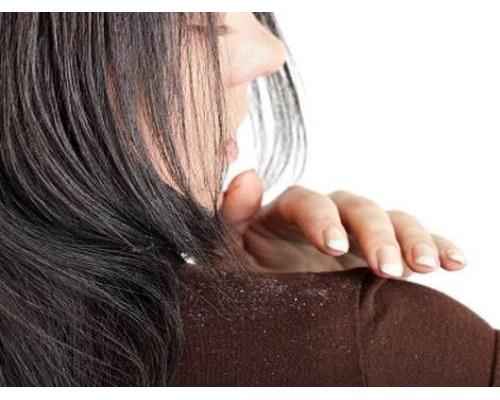 Khí hậu nóng ẩm tạo điều kiện thuận lợi cho Malassezia - vi nấm gây gàu hoạt động cùng với việc da đầu tiết nhiều dầu, tóc nhanh bết khiến bạn bực tức vì gàu và ngứa da đầu và mặc dù đã gội đầu thường xuyên nhưng tình trạng này vẫn không chấm dứt. Đừng vội lo lắng, hãy tham khảo các cách trị gàu và ngứa da đầu hiệu quả được...