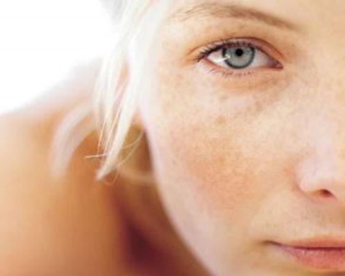 Sai lầm trong quá trình điều trị nám da