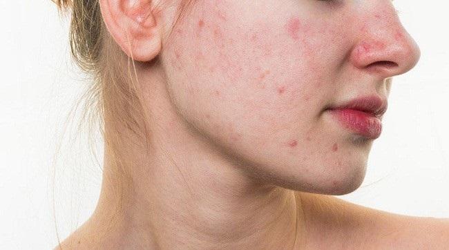 Dị ứng da do thời tiết hoặc các ảnh hưởng từ môi trường bên ngoài