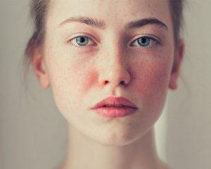 Cách trị dị ứng da mặt