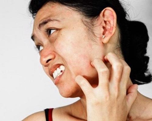 Sự khác biệt giữa da bị rối loạn và da nhạy cảm