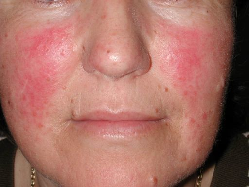 Da nhạy cảm có biểu hiện đỏ rát khi dùng một loại mỹ phẩm không phù hợp