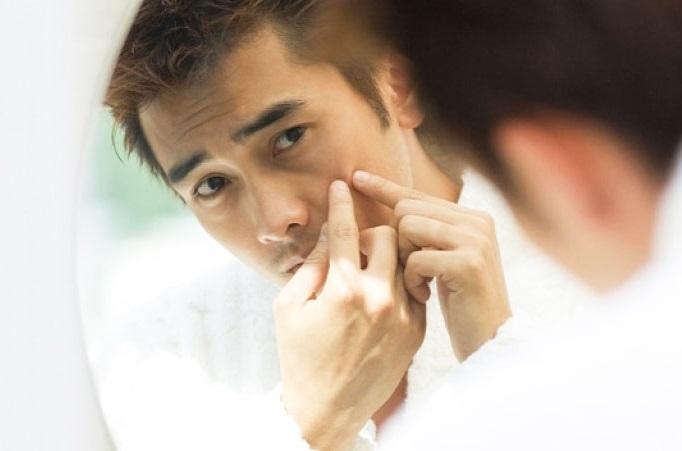 điều trị mụn nội tiết hiệu quả cho nam giới