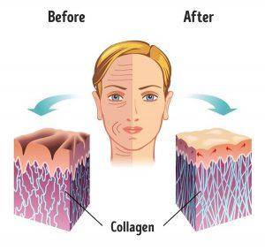 bổ sung collagen