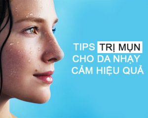 Tips Trị Mụn Cho Da Nhạy Cảm Hiệu Quả